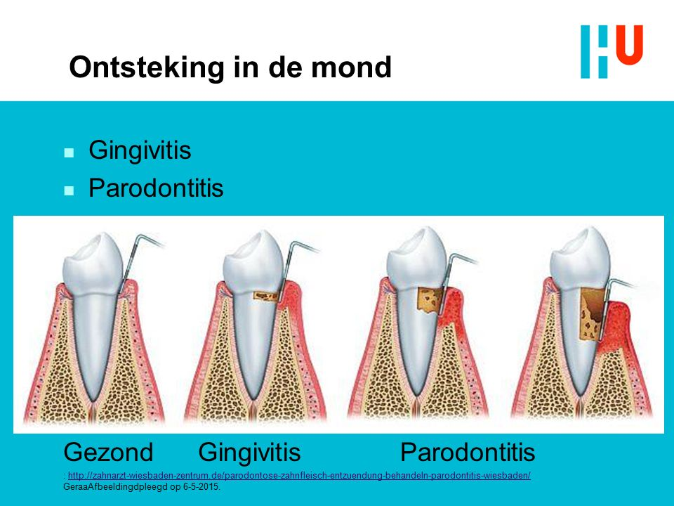 Ontsteking in de mond Gingivitis Parodontitis
