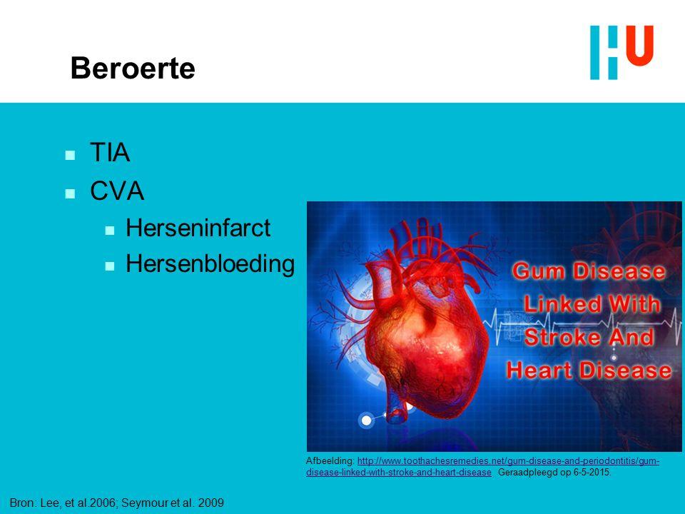 Beroerte TIA CVA Herseninfarct Hersenbloeding xxxxxxxxxxxxxxx