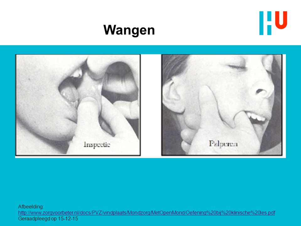 Wangen Instructie: - Stevig vasthouden tussen duim en wijsvinger en met goed licht inspecteren.
