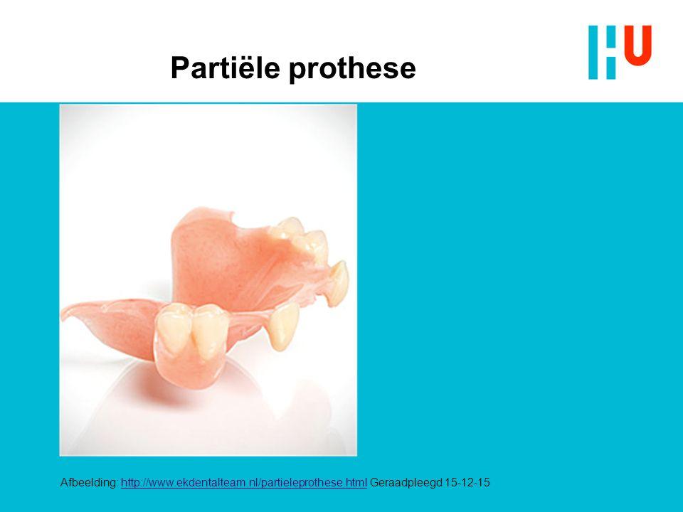 Partiële prothese xxxxxxxxxxxxxxx 4/28/2017 Gedeeltelijke prothese