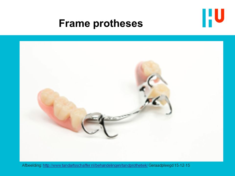Frame protheses