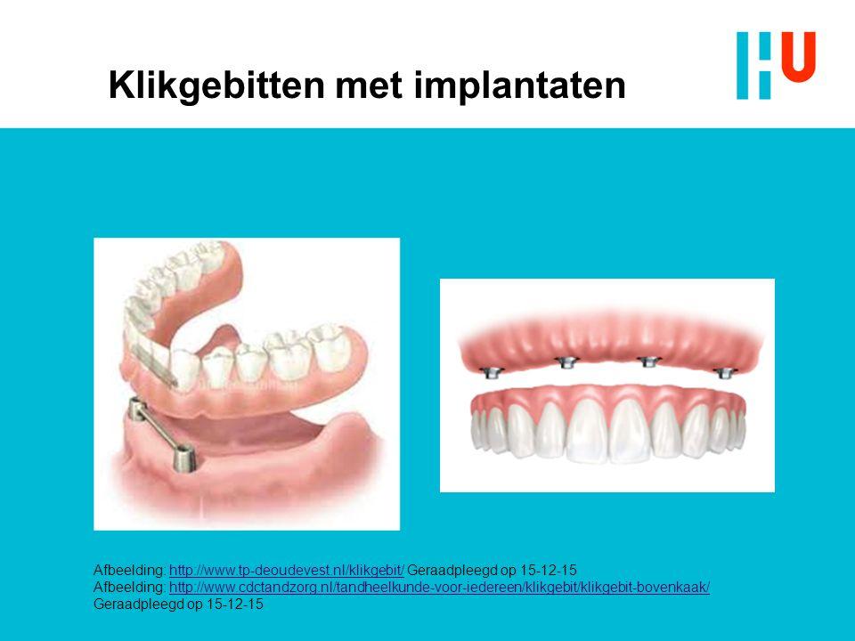 Klikgebitten met implantaten