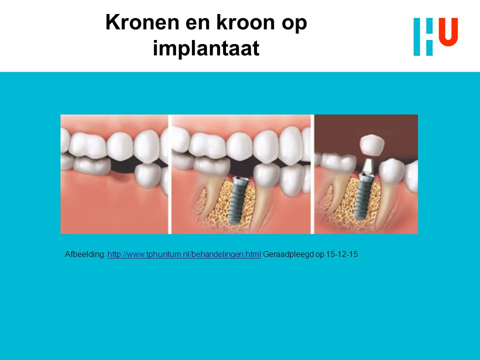 Kronen en kroon op implantaat