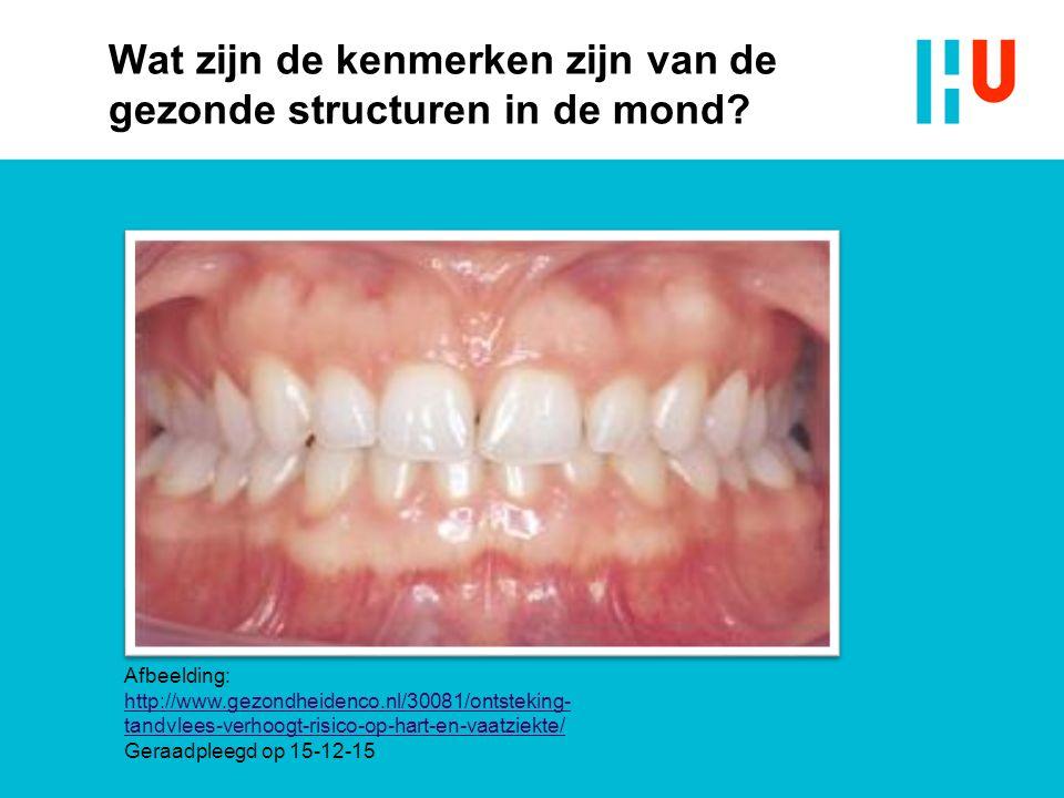 Wat zijn de kenmerken zijn van de gezonde structuren in de mond