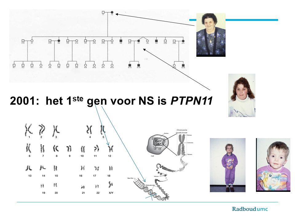 2001: het 1ste gen voor NS is PTPN11