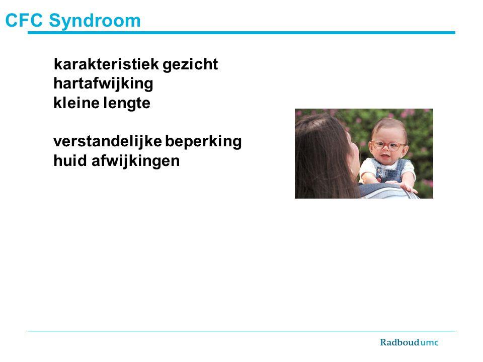 CFC Syndroom karakteristiek gezicht hartafwijking kleine lengte