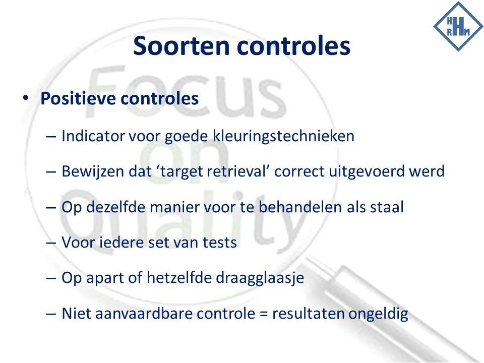 Soorten controles Positieve controles