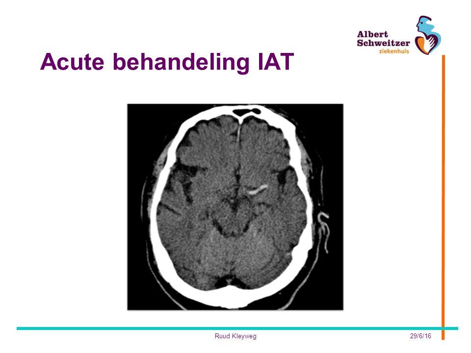 Acute behandeling IAT Ruud Kleyweg 28/4/17