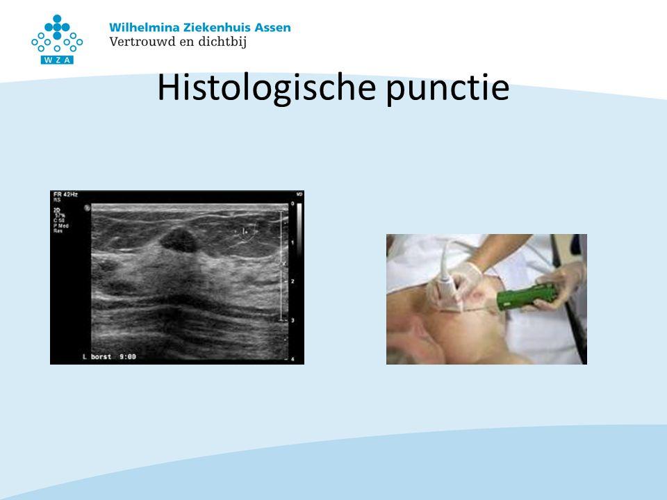 Histologische punctie