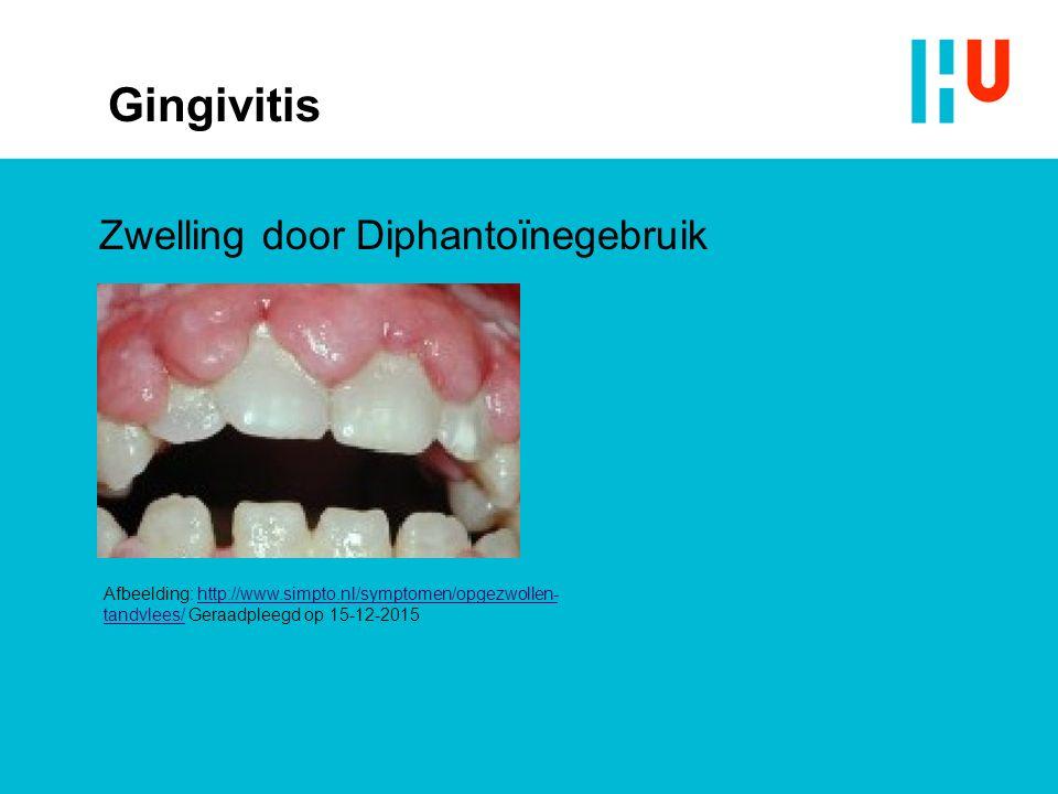 Gingivitis Zwelling door Diphantoïnegebruik