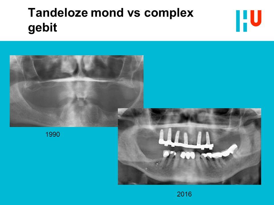 Tandeloze mond vs complex gebit