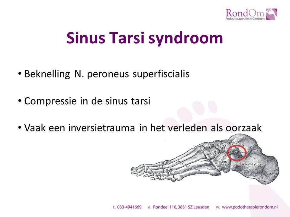 Sinus Tarsi syndroom Beknelling N. peroneus superfiscialis