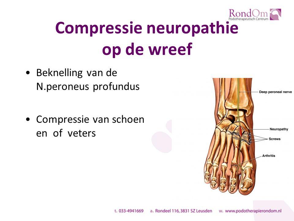 Compressie neuropathie op de wreef