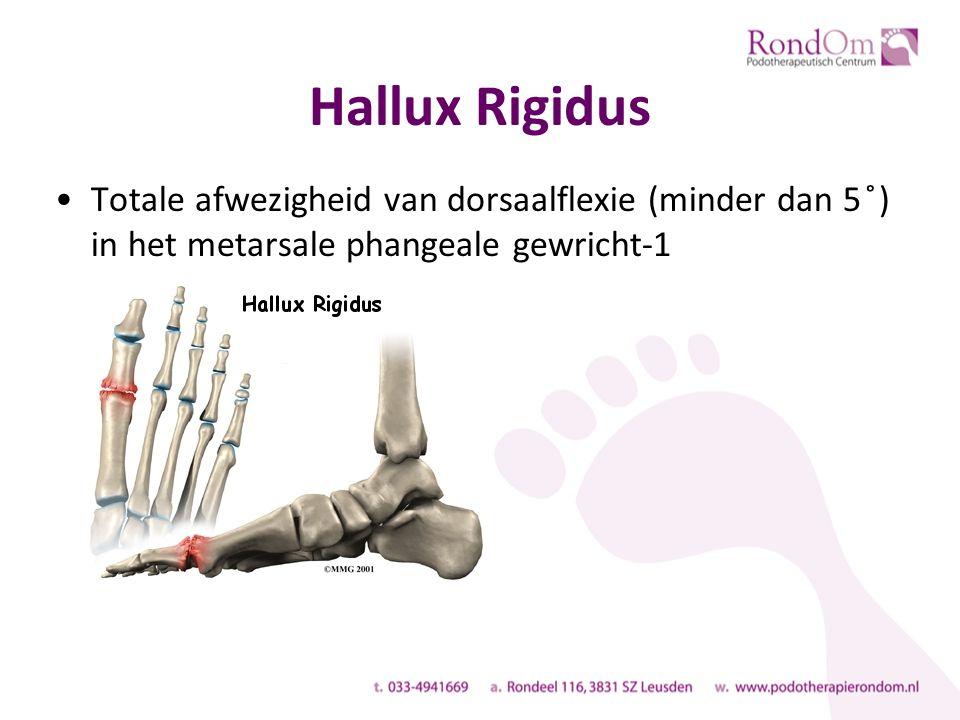 Hallux Rigidus Totale afwezigheid van dorsaalflexie (minder dan 5 ̊) in het metarsale phangeale gewricht-1.