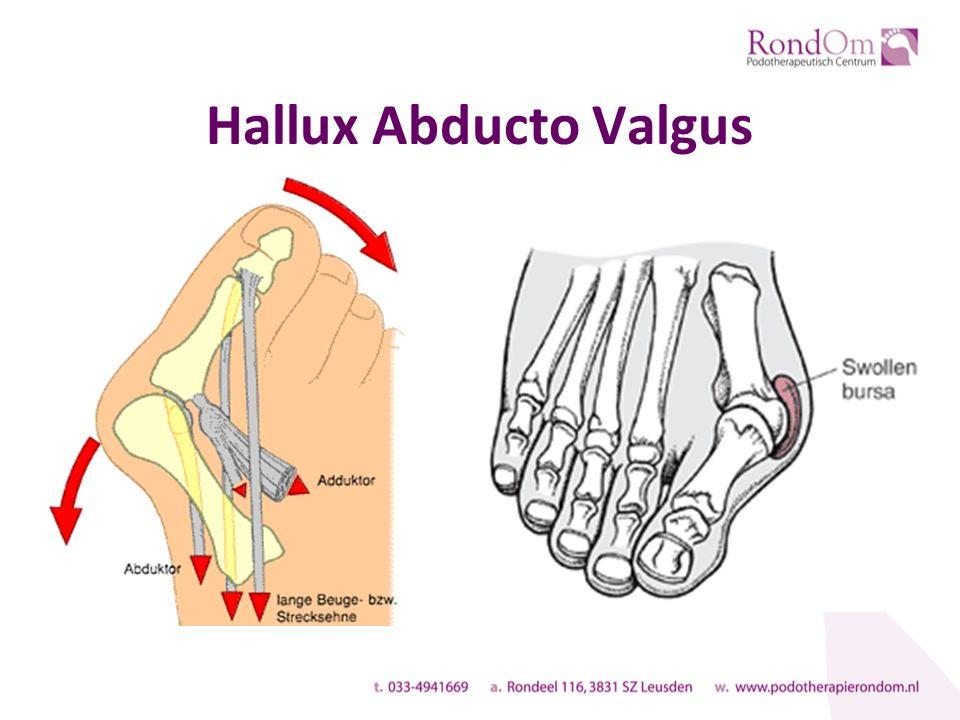 Hallux Abducto Valgus