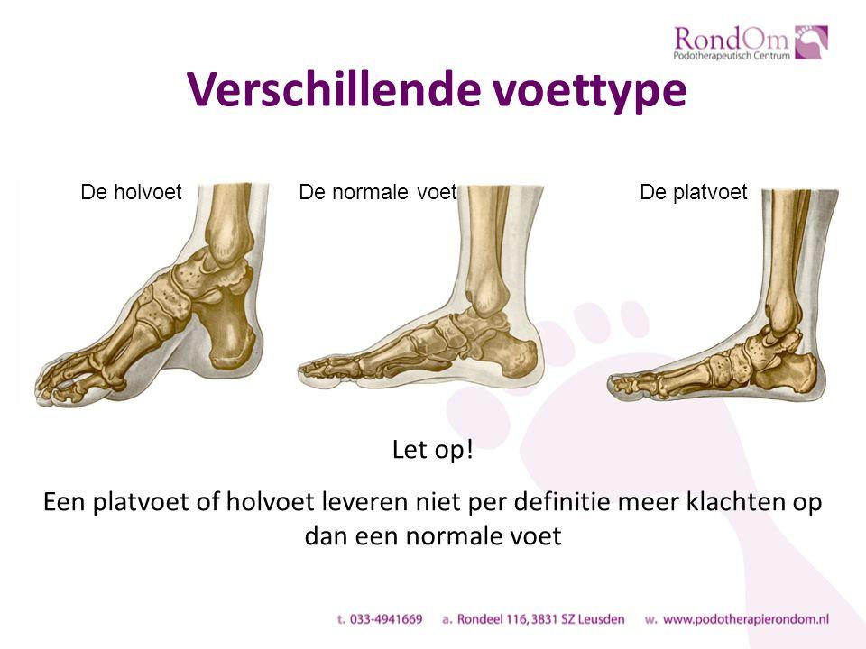 Verschillende voettype