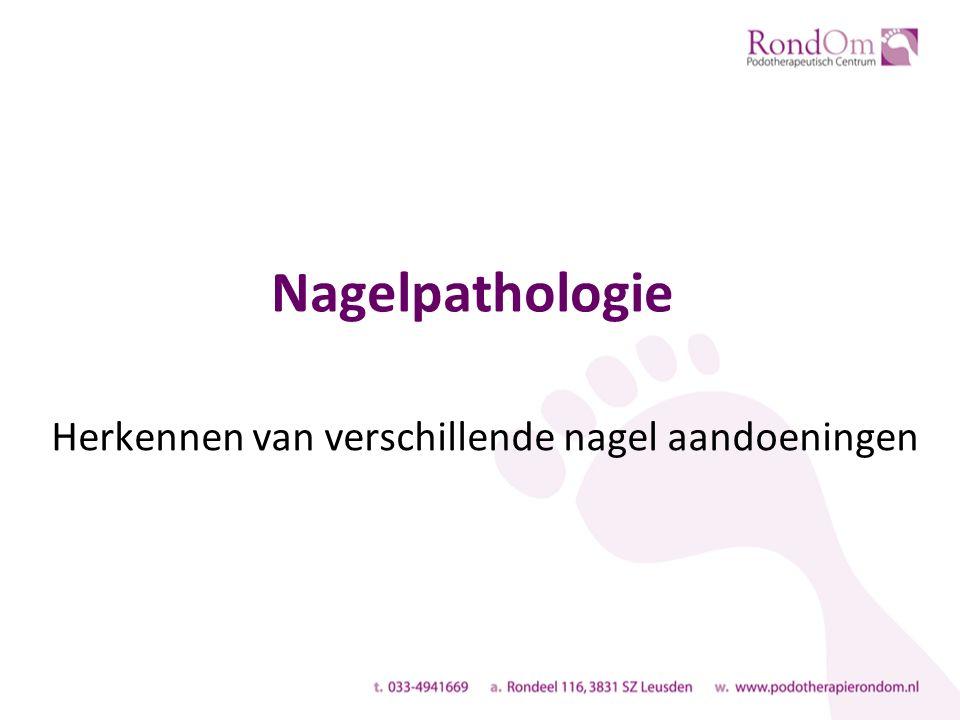 Nagelpathologie Herkennen van verschillende nagel aandoeningen