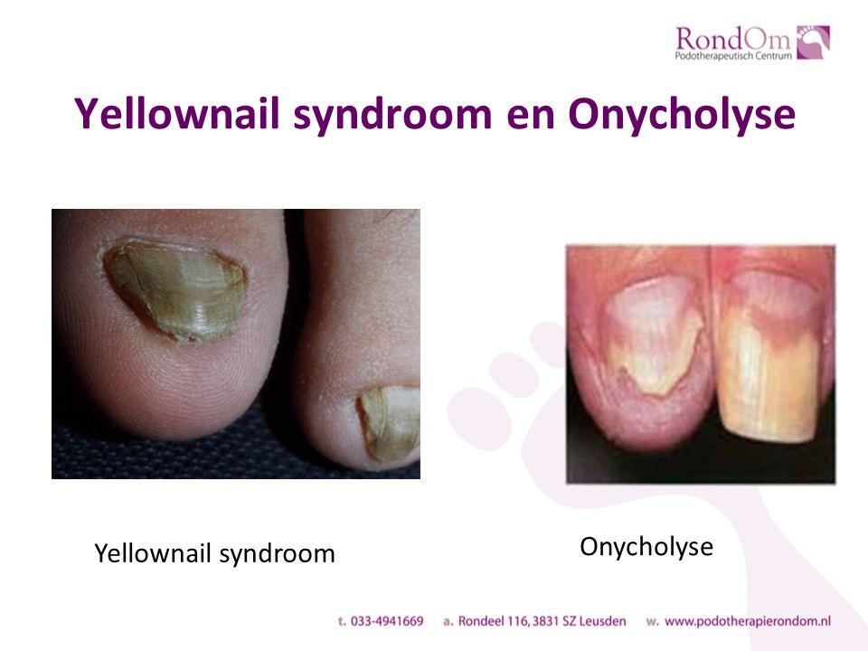 Yellownail syndroom en Onycholyse