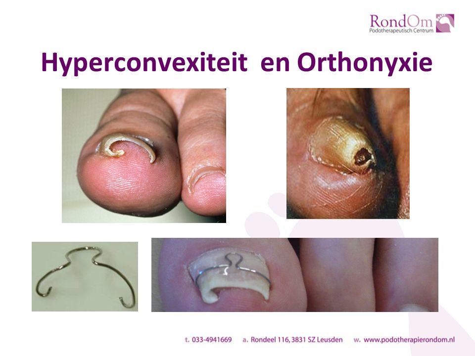 Hyperconvexiteit en Orthonyxie