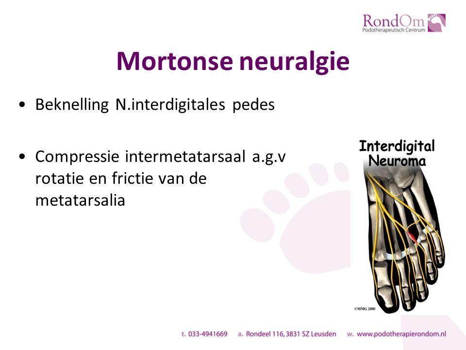 Mortonse neuralgie Beknelling N.interdigitales pedes