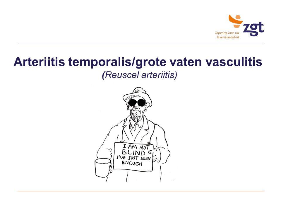 Arteriitis temporalis/grote vaten vasculitis (Reuscel arteriitis)