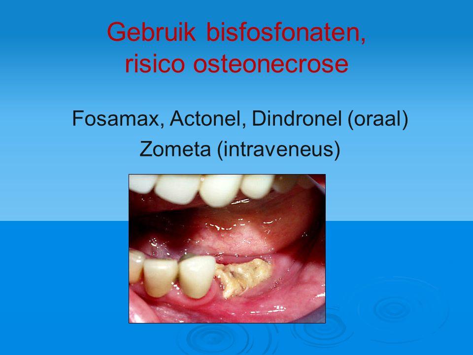 Gebruik bisfosfonaten, risico osteonecrose