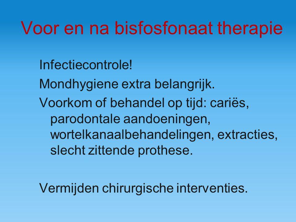 Voor en na bisfosfonaat therapie