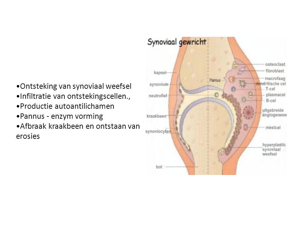 •Ontsteking van synoviaal weefsel