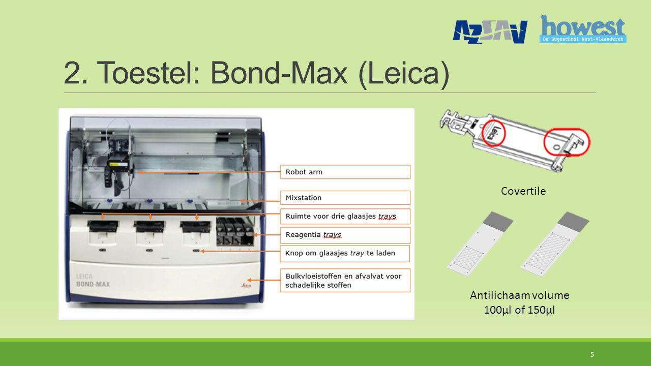 2. Toestel: Bond-Max (Leica)