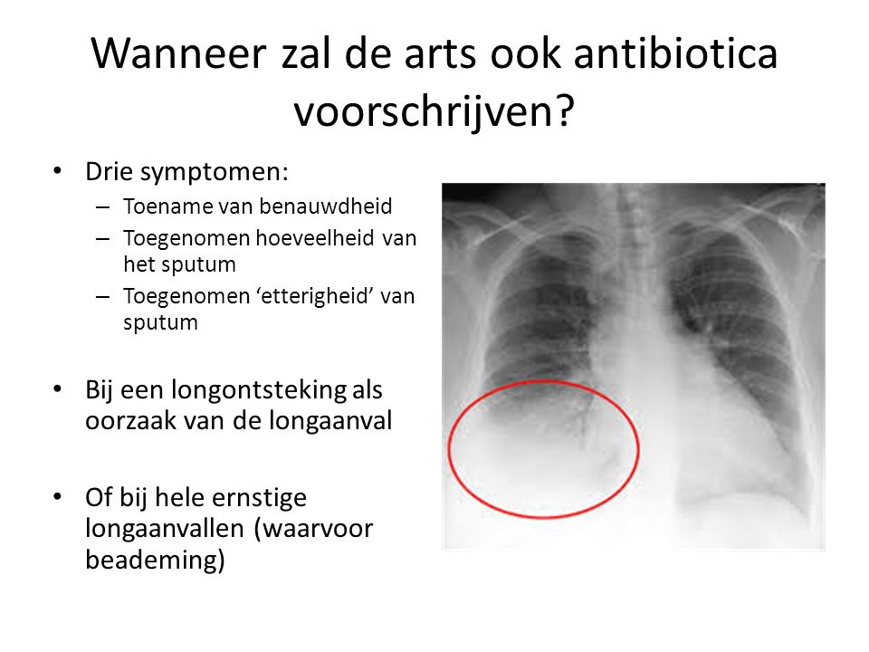 Wanneer zal de arts ook antibiotica voorschrijven