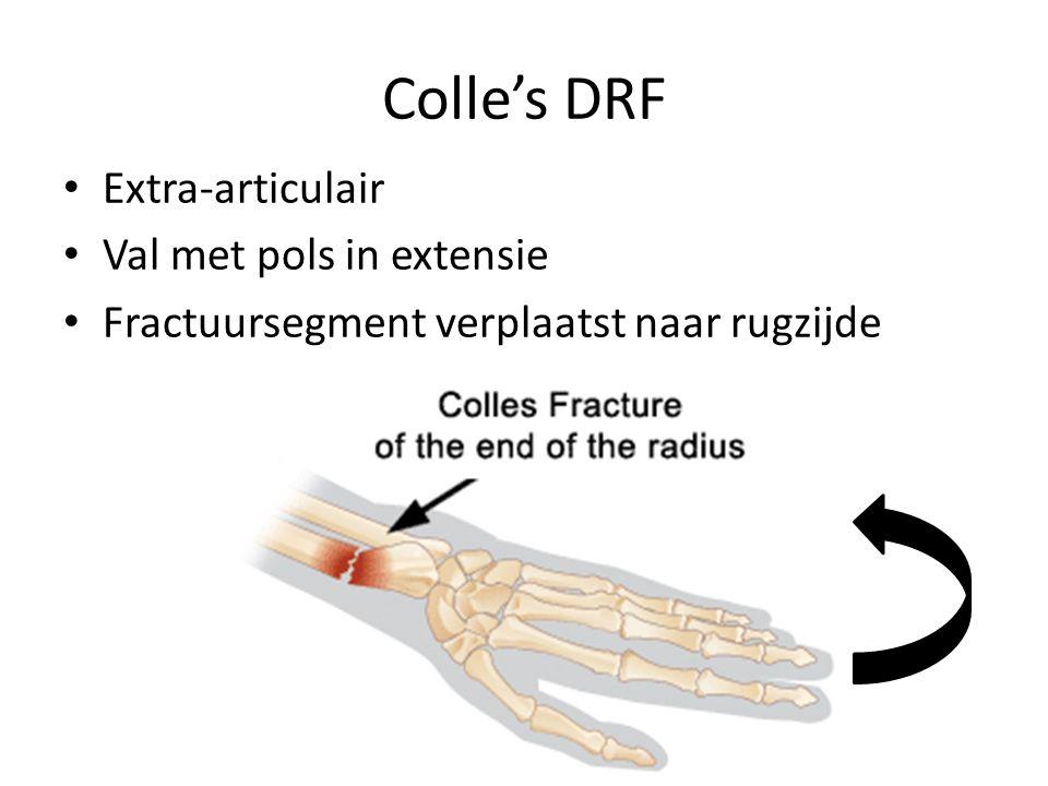Colle's DRF Extra-articulair Val met pols in extensie