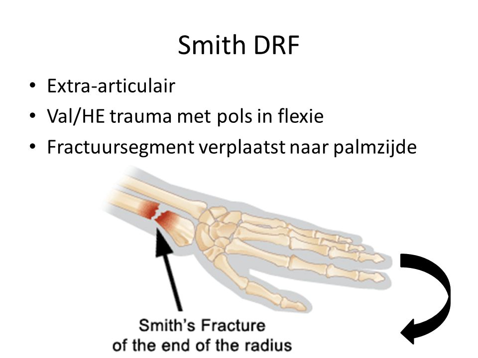 Smith DRF Extra-articulair Val/HE trauma met pols in flexie