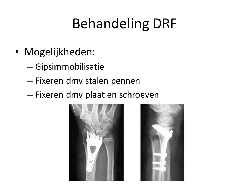 Behandeling DRF Mogelijkheden: Gipsimmobilisatie