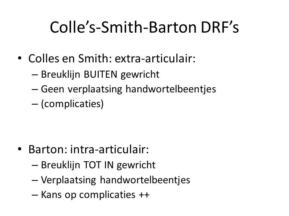 Colle's-Smith-Barton DRF's