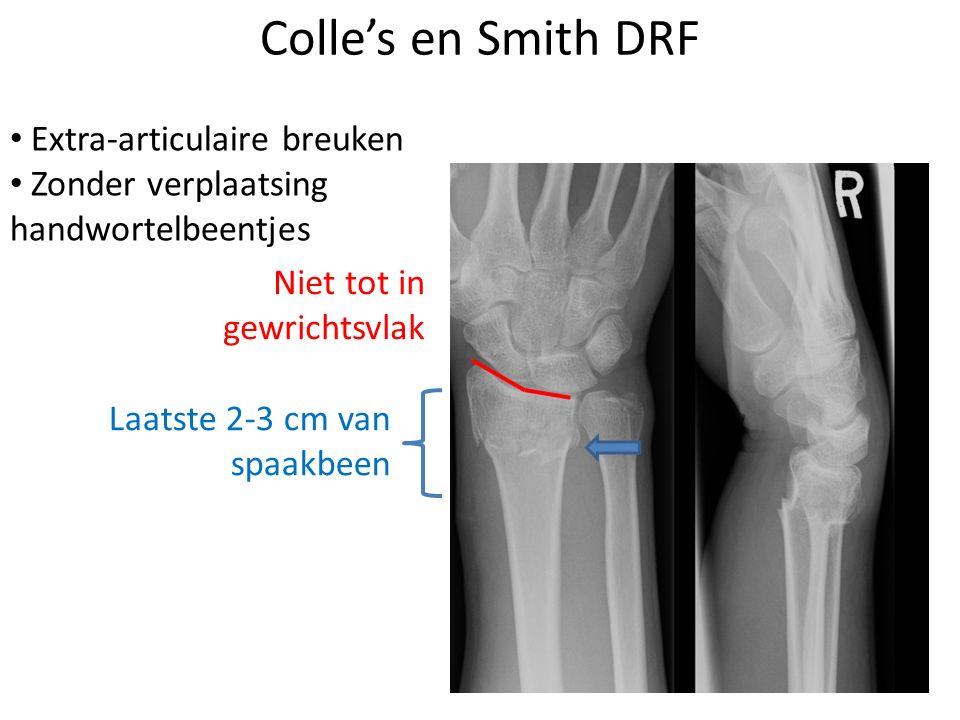Colle's en Smith DRF Extra-articulaire breuken