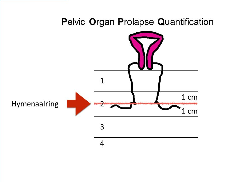 Pelvic Organ Prolapse Quantification