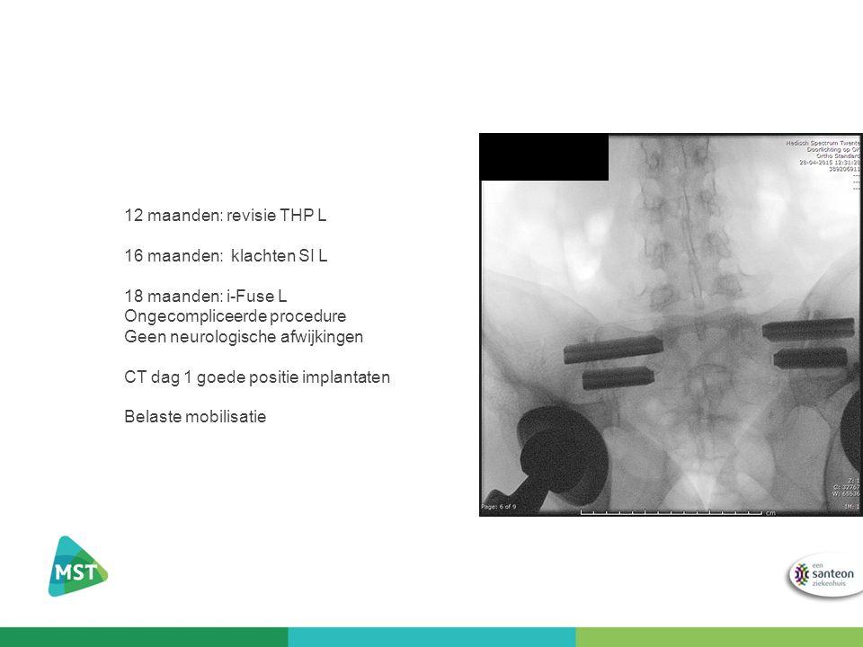 12 maanden: revisie THP L 16 maanden: klachten SI L. 18 maanden: i-Fuse L. Ongecompliceerde procedure.
