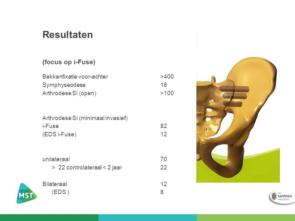 Resultaten (focus op i-Fuse)
