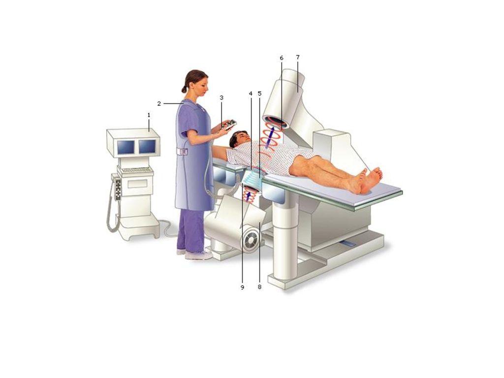 Vanuit de niersteenvergruizer wordt een hoge concentratie schokgolven op de niersteen gericht, Hierdoor valt de niersteen uiteen in gruis