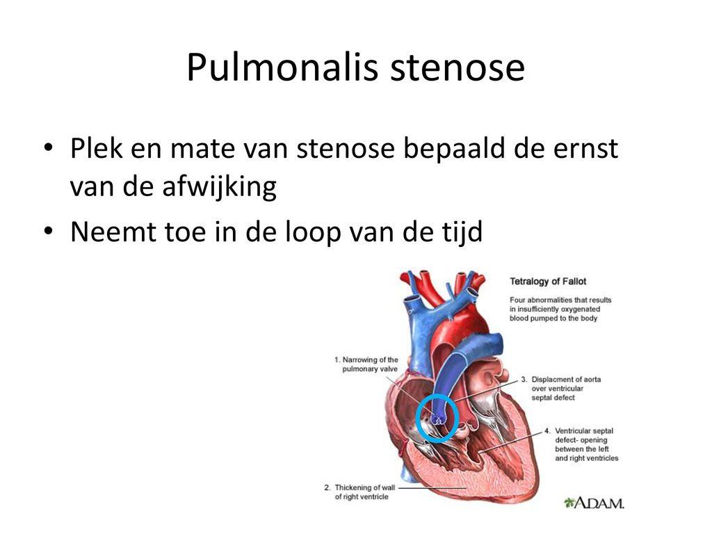 """Kruispunt"""" Diagnostiek en observaties - ppt download"""