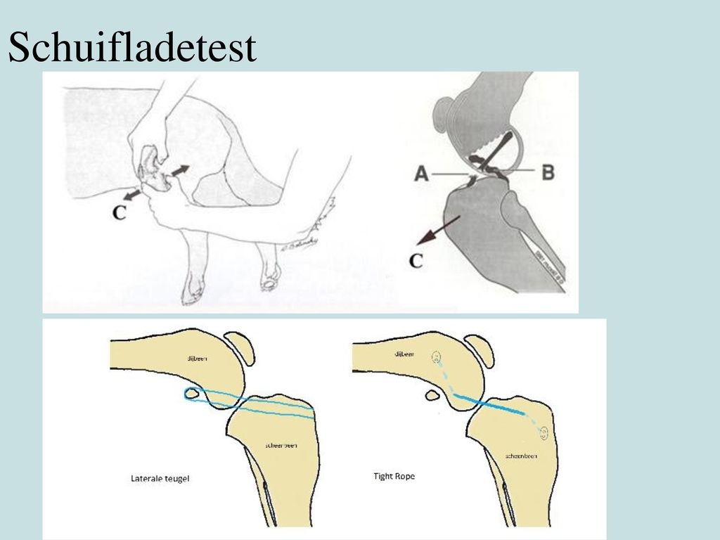 Schuifladetest Of TPLO en TTA (verzagingen van het scheenbeen  standverandering)