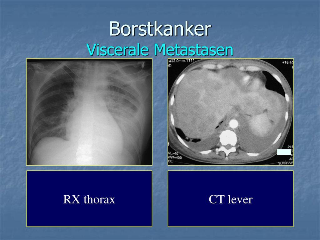 ct scan borstkanker