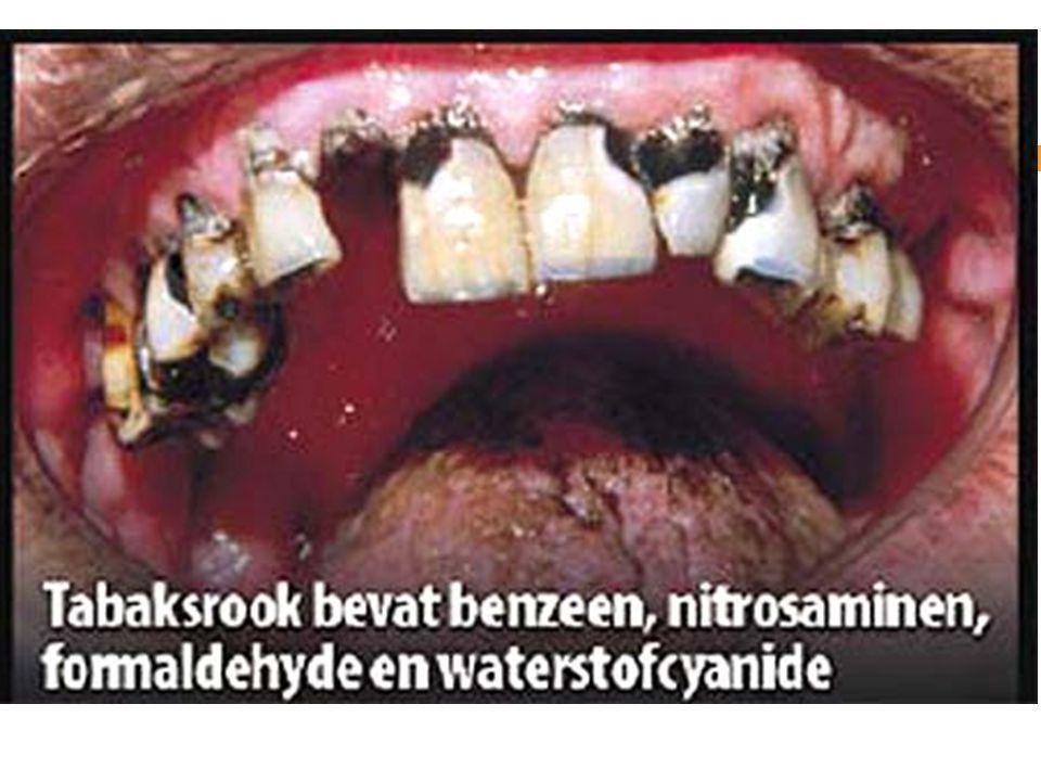 voor deze affiche, over smoking campaign hebben emotion én fear