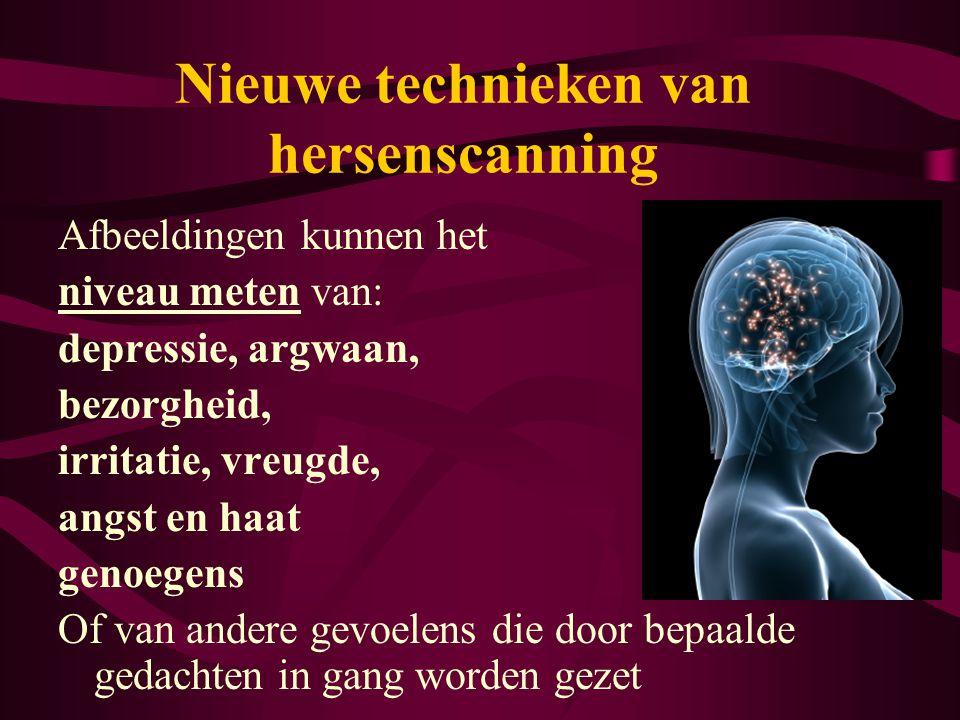 Nieuwe technieken van hersenscanning