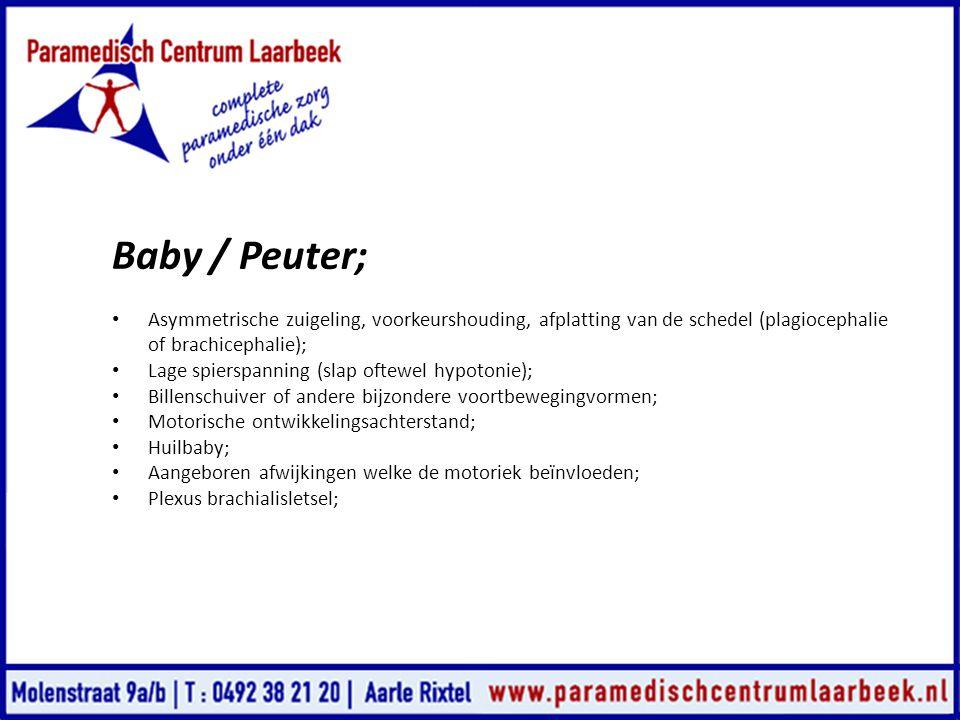 Baby / Peuter; Asymmetrische zuigeling, voorkeurshouding, afplatting van de schedel (plagiocephalie of brachicephalie);