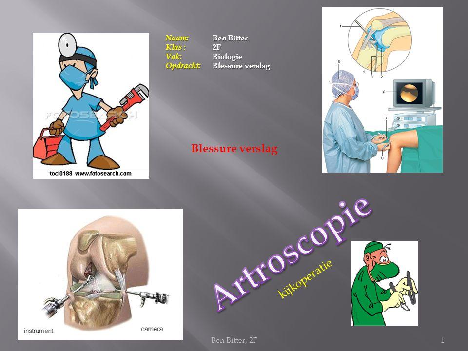Artroscopie Blessure verslag kijkoperatie Naam: Ben Bitter Klas : 2F