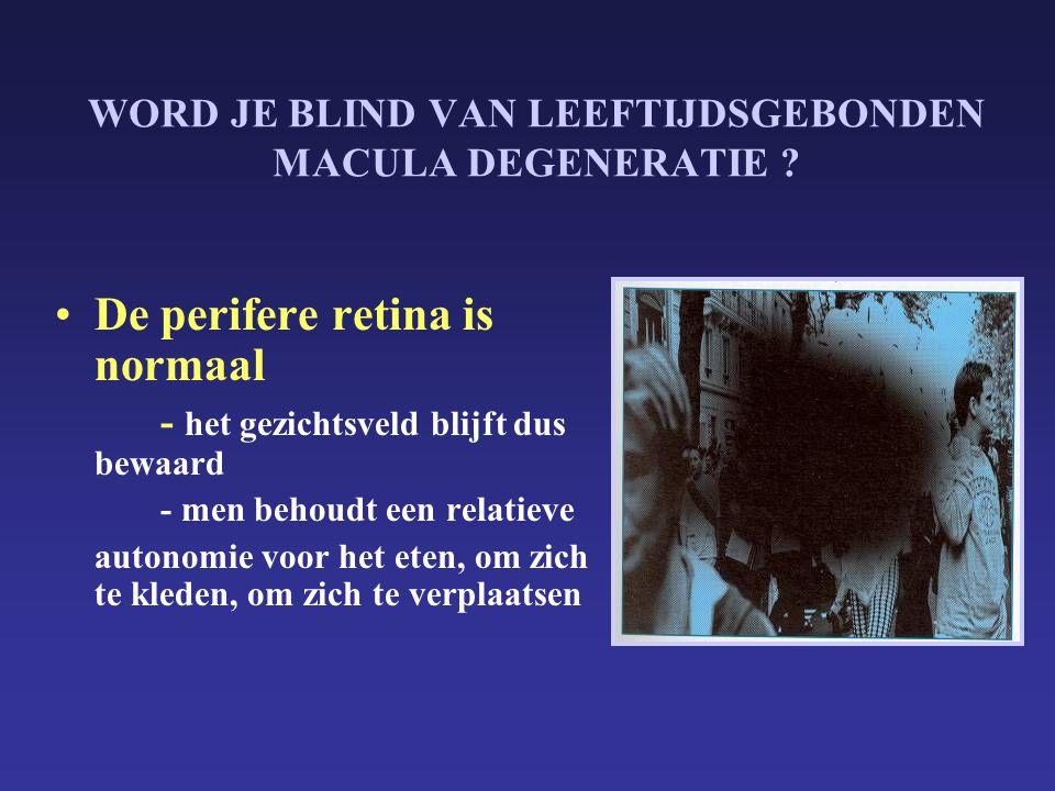 WORD JE BLIND VAN LEEFTIJDSGEBONDEN MACULA DEGENERATIE