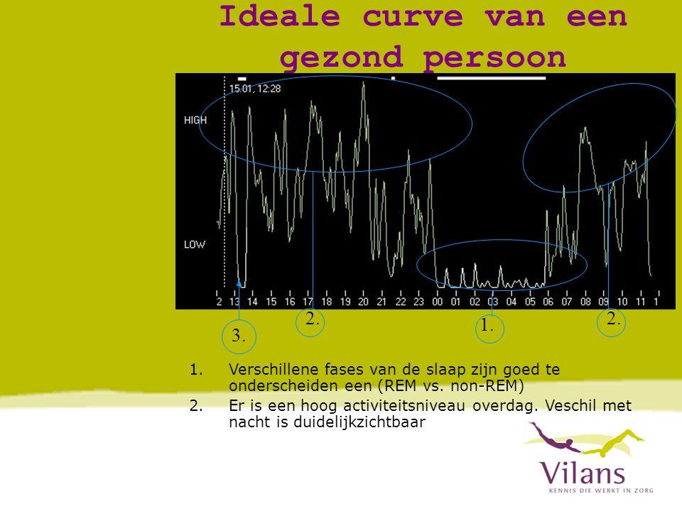 Ideale curve van een gezond persoon