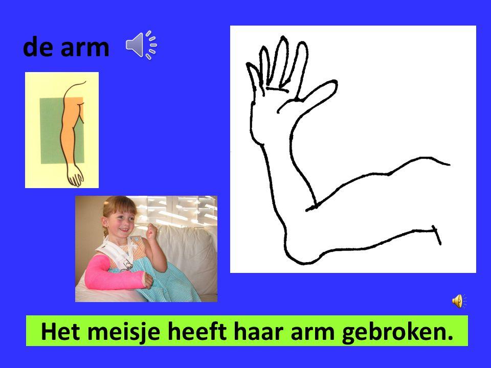 Het meisje heeft haar arm gebroken.