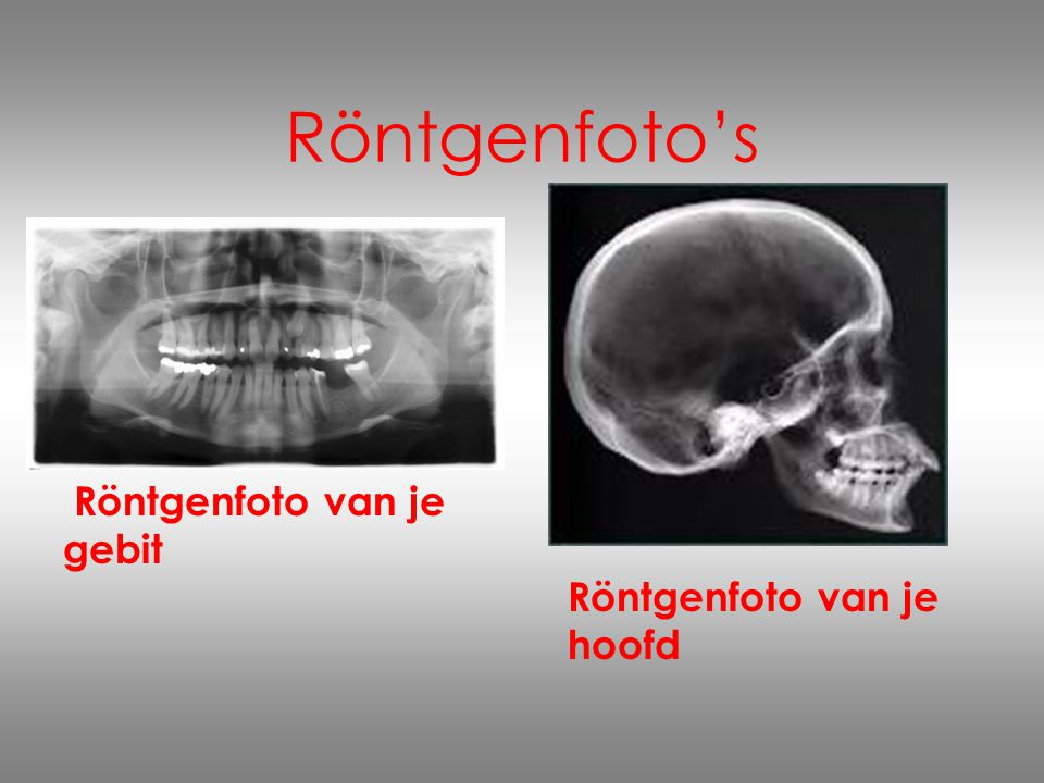 Röntgenfoto's Röntgenfoto van je gebit Röntgenfoto van je hoofd.